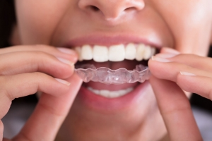 Invisalign in Columbus, photo of woman putting in transparent aligner on her teeth